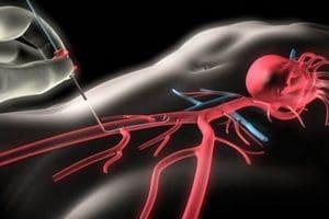 коронарография сердца