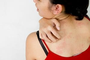 Аллергия и печень взаимосвязь