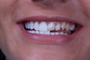 виниры на один зуб