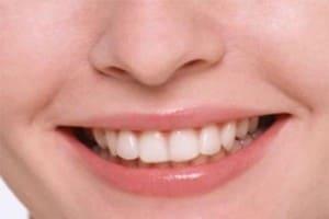 12 рецептов для здоровья зубов