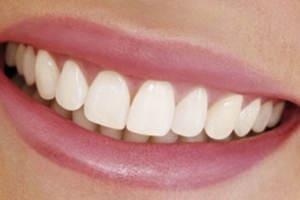 значение здоровых зубов для человека