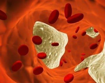Как определяют уровень холестерина в крови