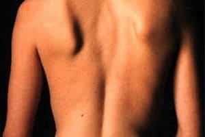 Атрофия мышц спины